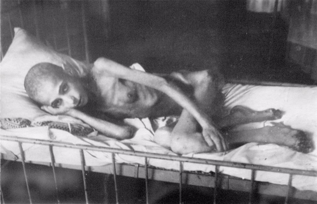 Stock Photo: 4266-16607 Girl victim of  dystrophy by Anonymous  /Museum of the Siege of Leningrad, St. Petersburg/1944-1945/Photograph/Russia/History