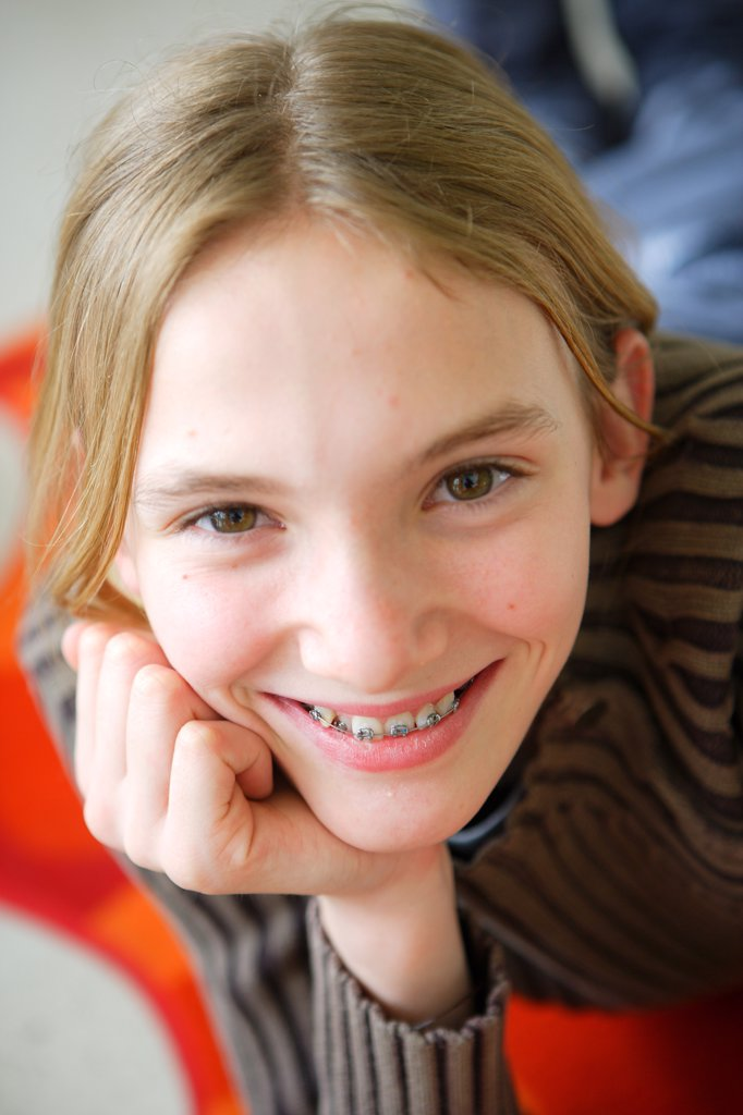 Teenager with fixed braces on her teeth. : Stock Photo