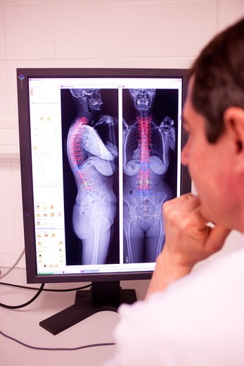 This 2D and 3D digital X-ray imaging equipment is dedicated to the orthopedic practice and permits a static study of the musculoskeletal system. It takes by low dose X-ray scanning two simultaneous, perpendicular planar views in the standing position. A reconstruction provides a 2 and 3D image of the osteoarticular structures of the patient. The university hospital of Bordeaux is the first hospital to use this diagnostic technique in France. : Stock Photo