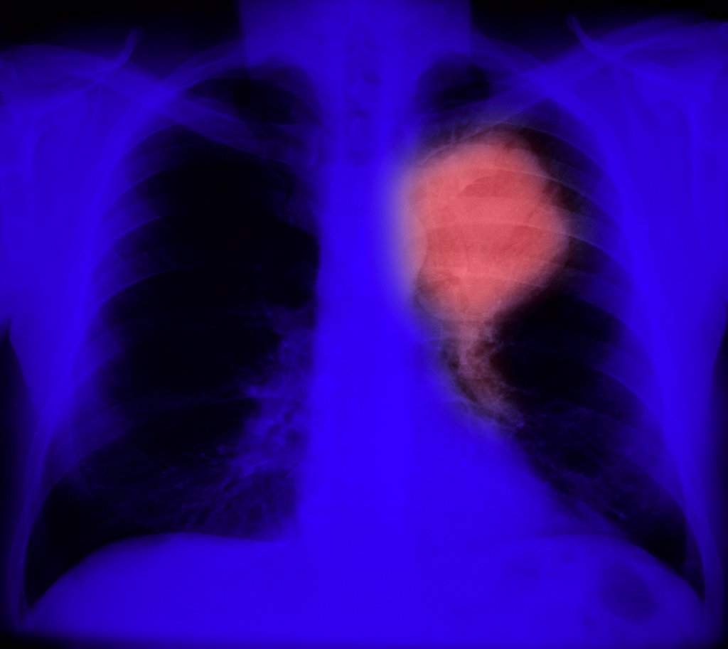 Primary lung cancer. Colored chest x-ray showing primary lung cancer. The malignant tumour is the ballon-shaped carcinoma (pink). Several types of primary lung cancers can occur : small cells carcinoma, large cells carcinoma and adenocarcinoma. : Stock Photo