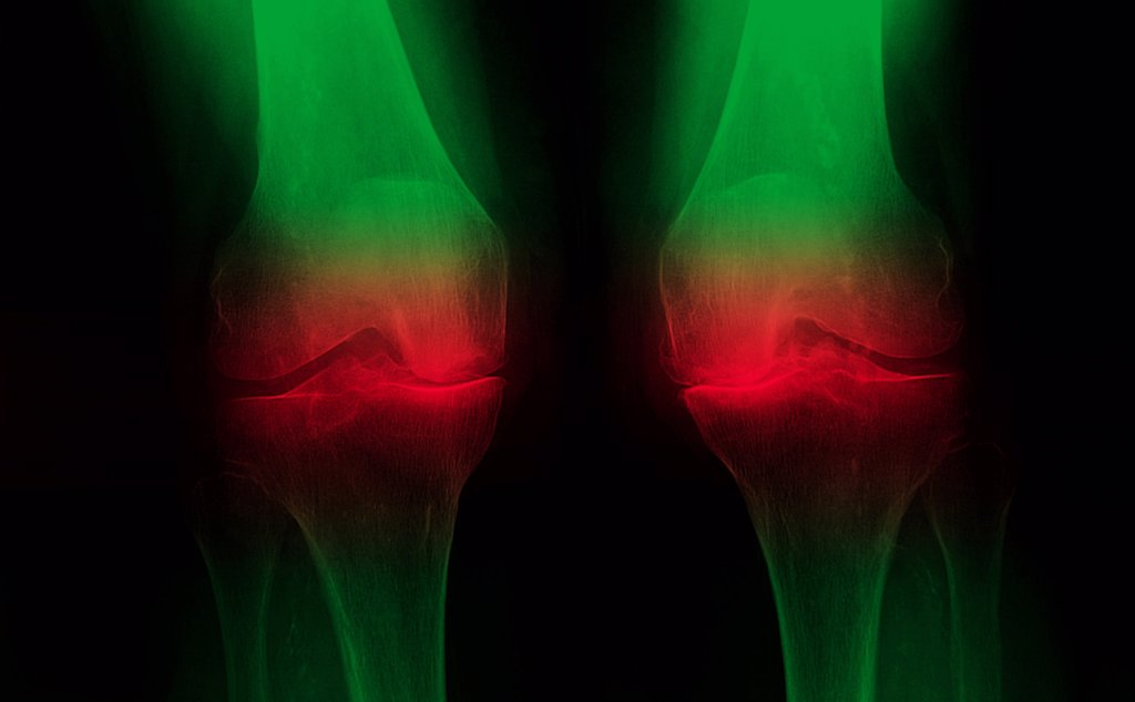 Knee arthrosis. X-ray of knees affected by arthosis (green), also called osteoarthritis or gonarthrosis. It is a joint disease that can cause cartilage destruction (seen as a reduction in the joint space), bone erosions, and tendon inflammation. : Stock Photo