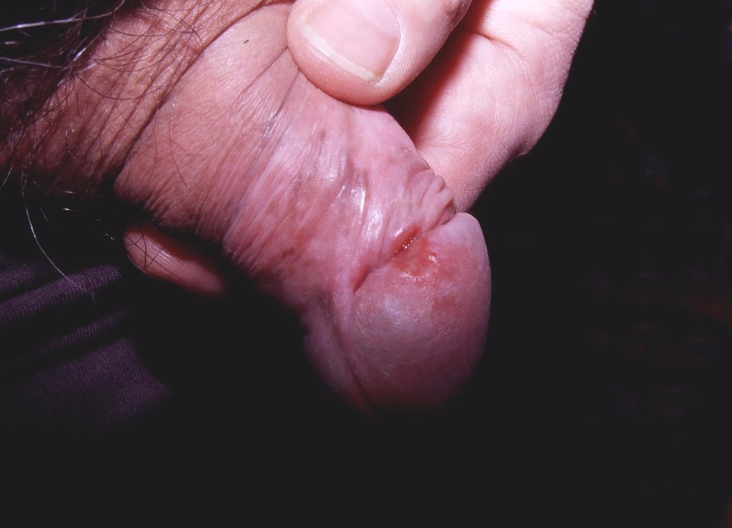 close up penis pics Close-up of Cumming Penis - Free Porn Videos - YouPorn.