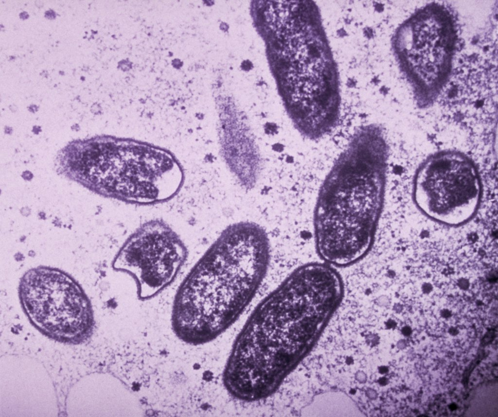 Rickettsia rickettsii. Transmission electron micrograph (TEM) of Rickettsia rickettsii. This bacterium, causing the Rocky Mountain spotted fever observed in the Rocky Mountains (North America) and India, is transmitted to man with a tick (genus Dermacentor, Amblyomma and Haemaphysalis : Stock Photo