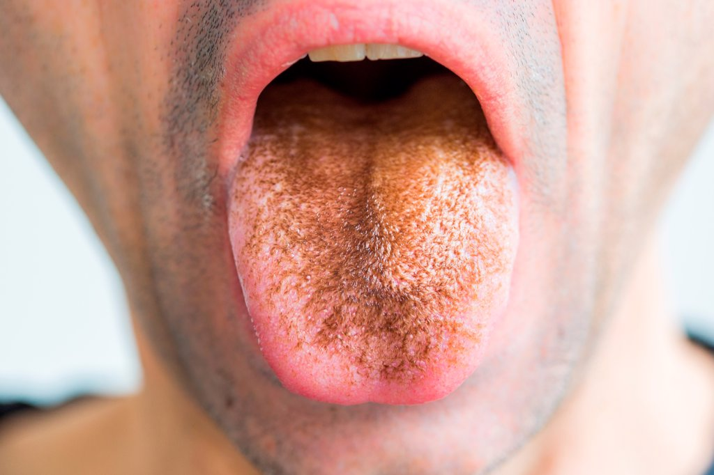 Close-up of black hairy tongue in an adult male patient caused by ...