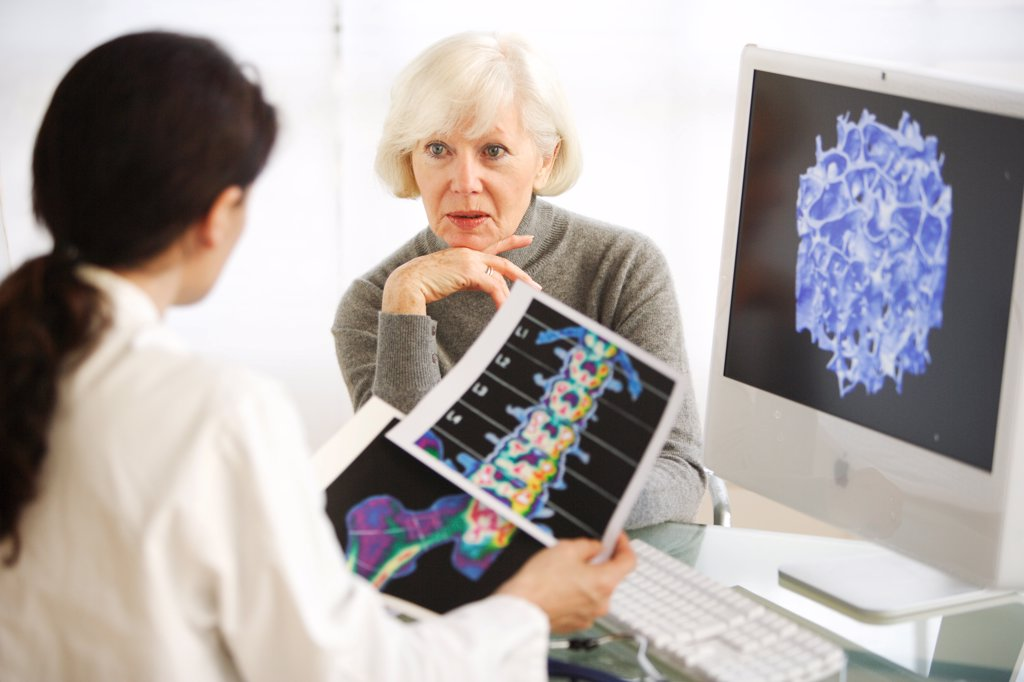 Doctor showing a patient the effect of osteoporosis. : Stock Photo