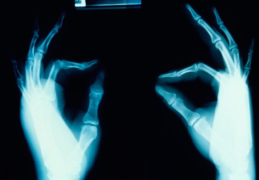 Stock Photo: 4286-39886 X-ray of two human hands with thumb and pointer fingers touching.