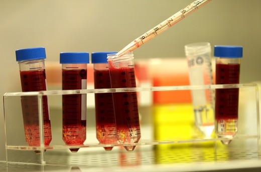 Blood test in cell factory : Stock Photo
