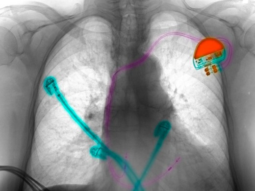 Chest x-ray (CXR) of a 91 year old woman with a pacemaker and cardiac monitoring leads, being treated in the intensive care unit : Stock Photo