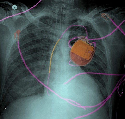 Stock Photo: 4297-1026 Chest x-ray of a 53 year old man with a pacemaker and pulmonary edema