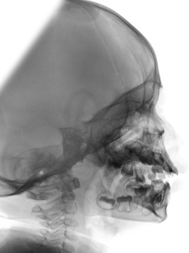 Stock Photo: 4297-1103 Normal lateral skull x-ray of a 2 year old boy
