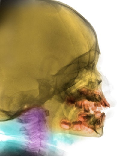 Normal lateral skull x-ray of a 2 year old boy : Stock Photo