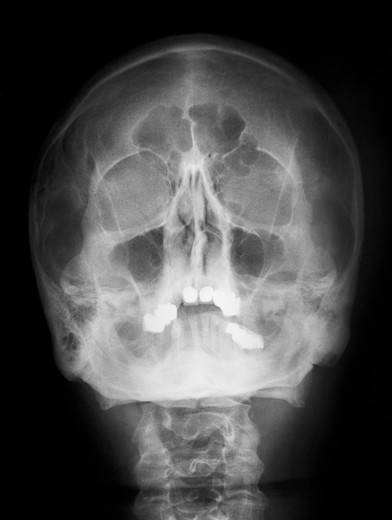 Skull x-ray of a 54 year old man with the maxillary and frontal sinuses highlighted : Stock Photo