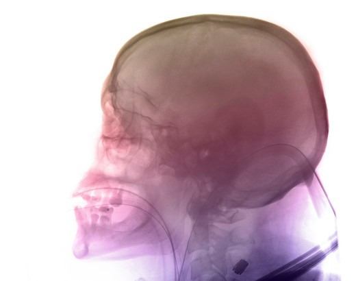 Stock Photo: 4297-1112 Skull x-ray of a 47 year old patient who was in a motorcycle accident. His lungs are intubated, and the tube going into his mouth can be seen