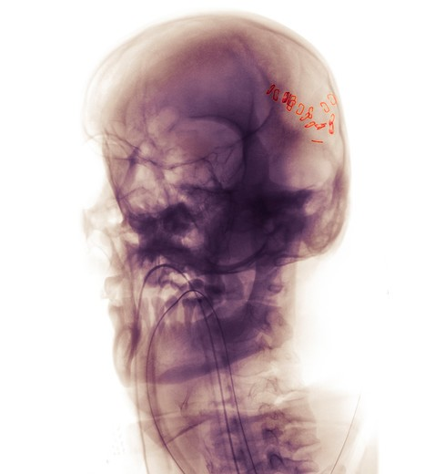 Skull x-ray of a 47 year old patient who was in a motorcycle accident. He is intubated and has a scalp laceration which has been stapled : Stock Photo