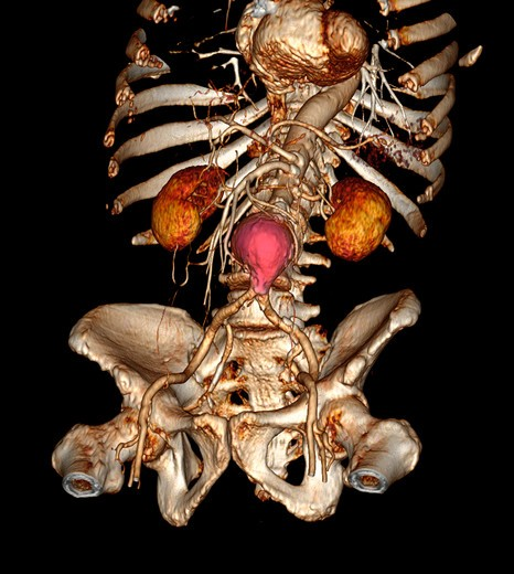 Stock Photo: 4297-1141 CT scan images showing an abdominal aortic aneurysm which developed between the renal arteries and the common iliac arteries