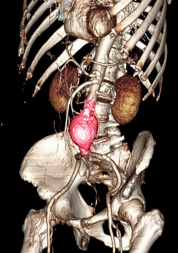 CT scan images showing an abdominal aortic aneurysm which developed between the renal arteries and the common iliac arteries : Stock Photo