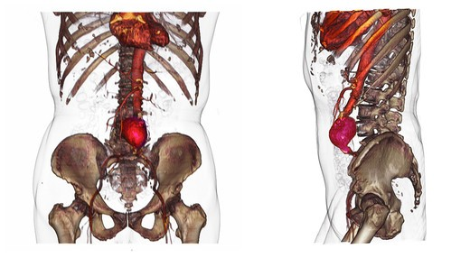 Stock Photo: 4297-1144 CT scan images showing an abdominal aortic aneurysm which developed between the renal arteries and the common iliac arteries