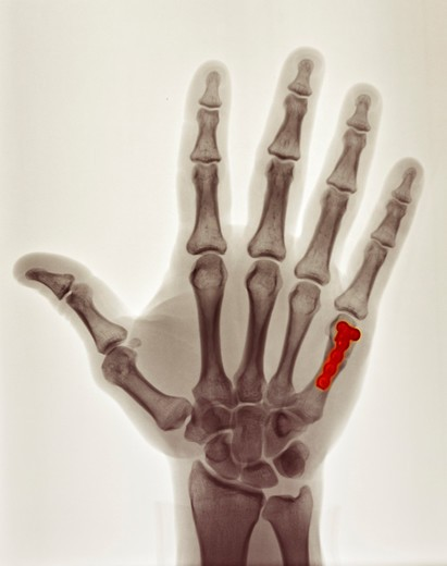 Stock Photo: 4297-1154 Colorized x-ray of the hand of a 40 year old man showing the surgical repair of a boxer's fracture with a plate and screws