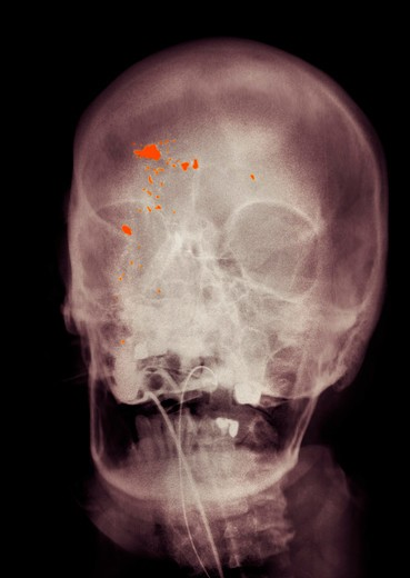 Colorized x-ray of the skull showing a gunshot wound to the head. The patient has been intubated to assist in breathing : Stock Photo