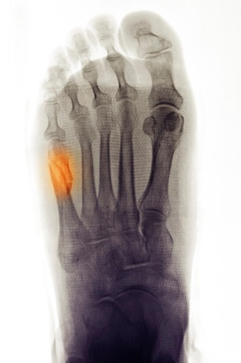 Colorized foot x-ray showing a fifth metatarsal fracture in a 79 year old woman : Stock Photo