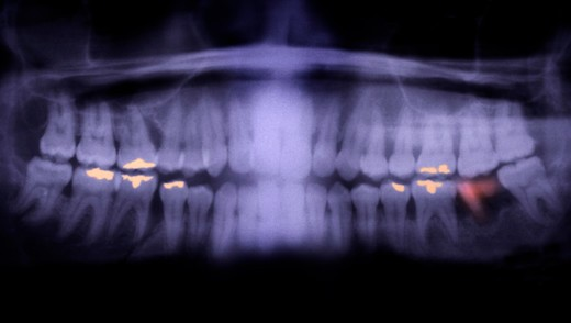 Colorized panorex x-ray showing dental fillings and a decayed tooth : Stock Photo