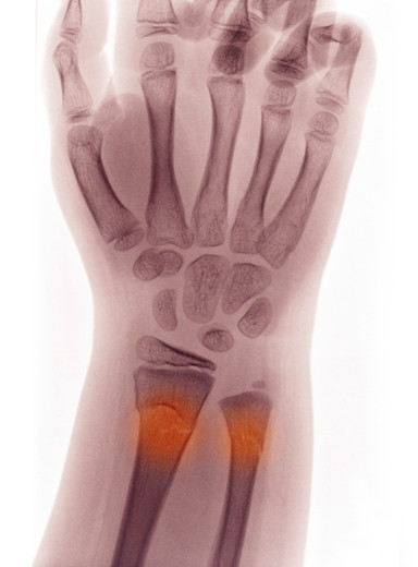 Stock Photo: 4297-1202 Wrist and Forearm X-ray of a buckle fracture of a 9 year old boy