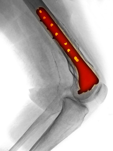 Stock Photo: 4297-1203 Knee x-ray of a 56 year old woman who had surgery to repair a fracture of the distal femur