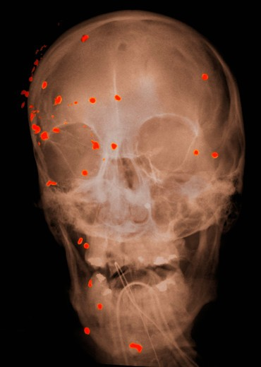 Stock Photo: 4297-1204 Head x-ray of a 53 year old man with gunshot wounds