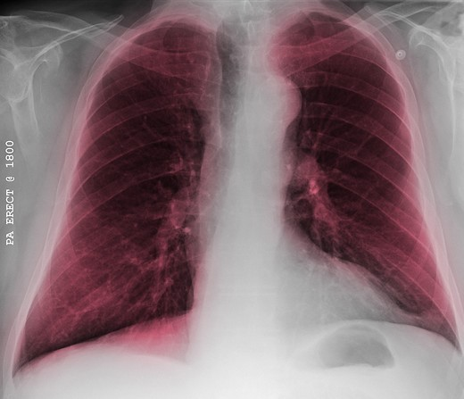 Chest x-ray of a 76 year old man with COPD, chronic obstructive pulmonary disease : Stock Photo