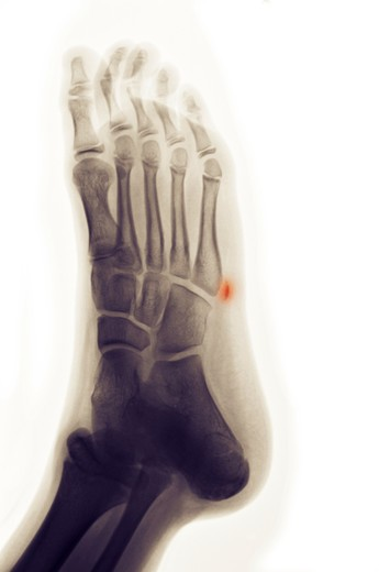 Colorized x-ray of an avulsion fracture of the 5th metatarsal of the foot : Stock Photo