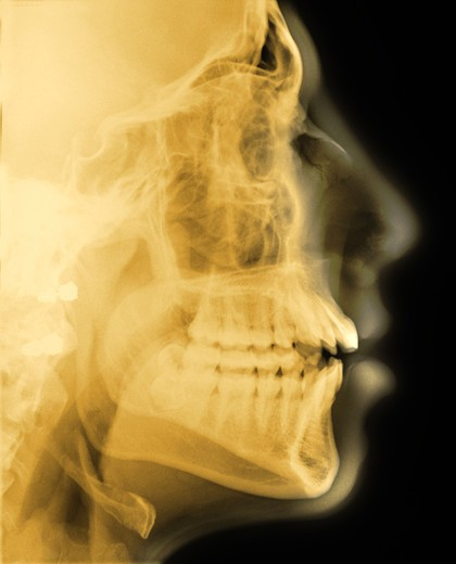 Stock Photo: 4297-1379 Lateral skull x-ray of a 18 year old man