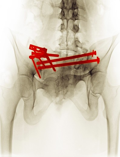 Stock Photo: 4297-1380 Digitally enhanced colorized x-ray showing the surgical repair of a pelvic fracture of a 21 year old woman involved in a motor vehicle accident