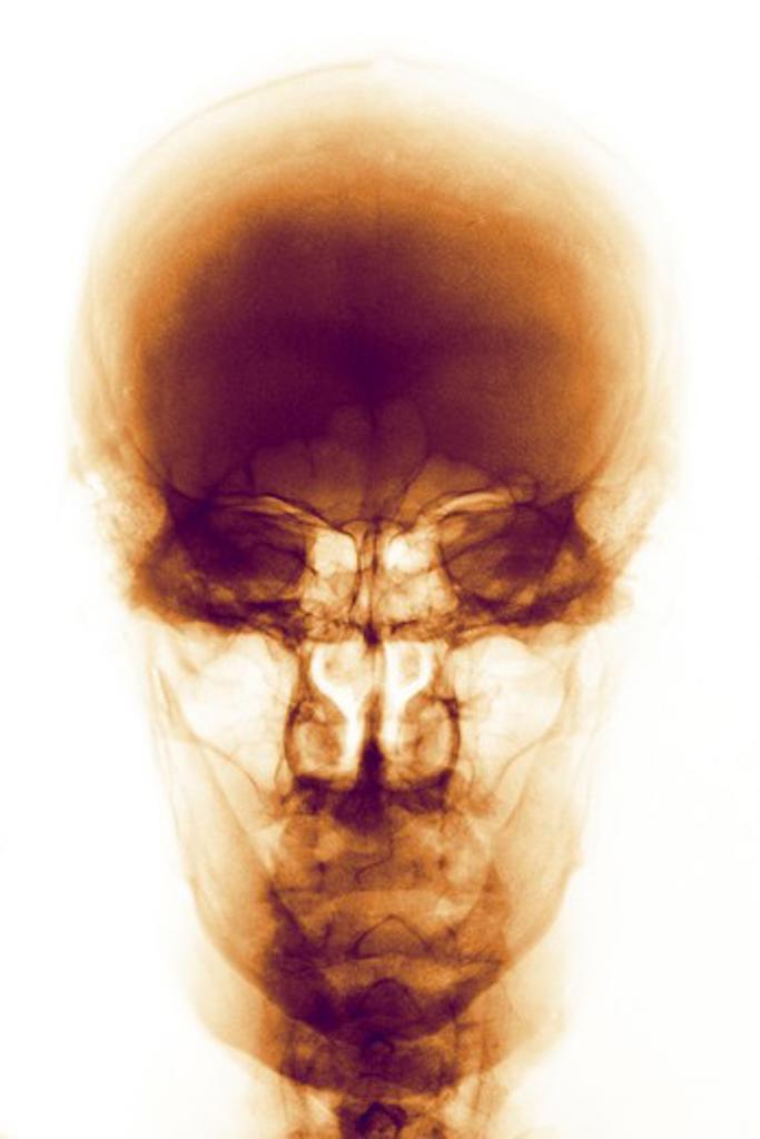 Stock Photo: 4297-1386 Normal skull x-ray