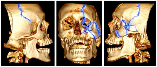 Stock Photo: 4297-1403 3D CT scan reconstruction showing fractures of the left side of the face and skull of a 24 year old man
