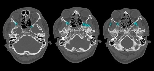 Stock Photo: 4297-1534 CT scan of the head of a 16 year old boy showing fractures of the facial bones, highlighted in blue
