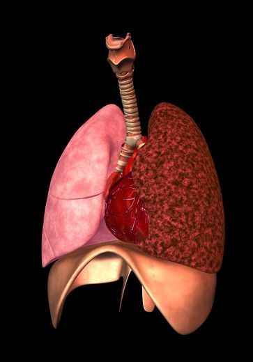 Stock Photo: 4297-1550 Illustration of the human lungs showing a normal right lung and the effect of smoking (left lung)