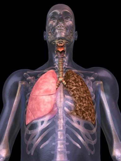 Stock Photo: 4297-1552 Illustration of the human lungs showing a normal right lung and the effect of smoking (left lung)