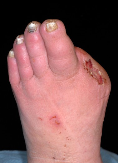 Stock Photo: 4297-1626 Foot of a 63 year old diabetic woman who had her toe amputated because of poor circulation