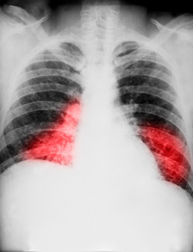 Chest x-ray showing diffuse pulmonary infiltration due to acute pulmonary histoplasmosis caused by H. capsulatum : Stock Photo
