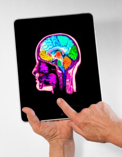 Stock Photo: 4297R-2006 Digital tablet showing an x-ray of a colorized MRI scan of the brain