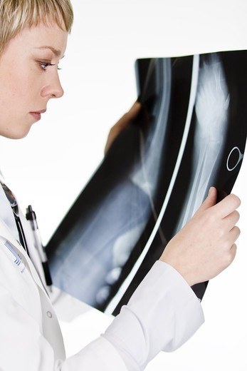 Stock Photo: 4306R-21679 A female doctor holding an X-ray plate, Sweden.