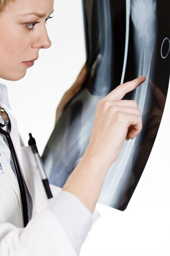 Stock Photo: 4306R-21680 A female doctor holding an X-ray plate, Sweden.