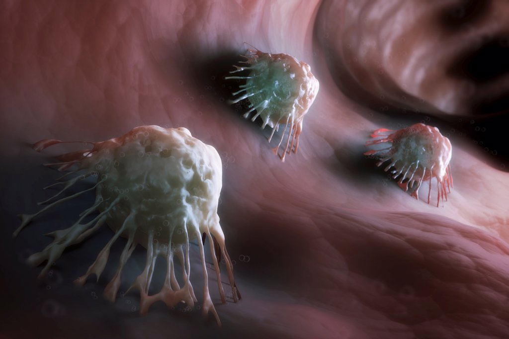 Stock Photo: 4378-1868 A group of cancer cells.