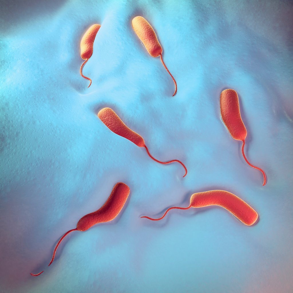 an investigation of vibrio cholera Cholera is an infectious disease that causes severe watery diarrhea, which can lead to dehydration and even death if untreated it is caused by eating food or drinking water contaminated with a.