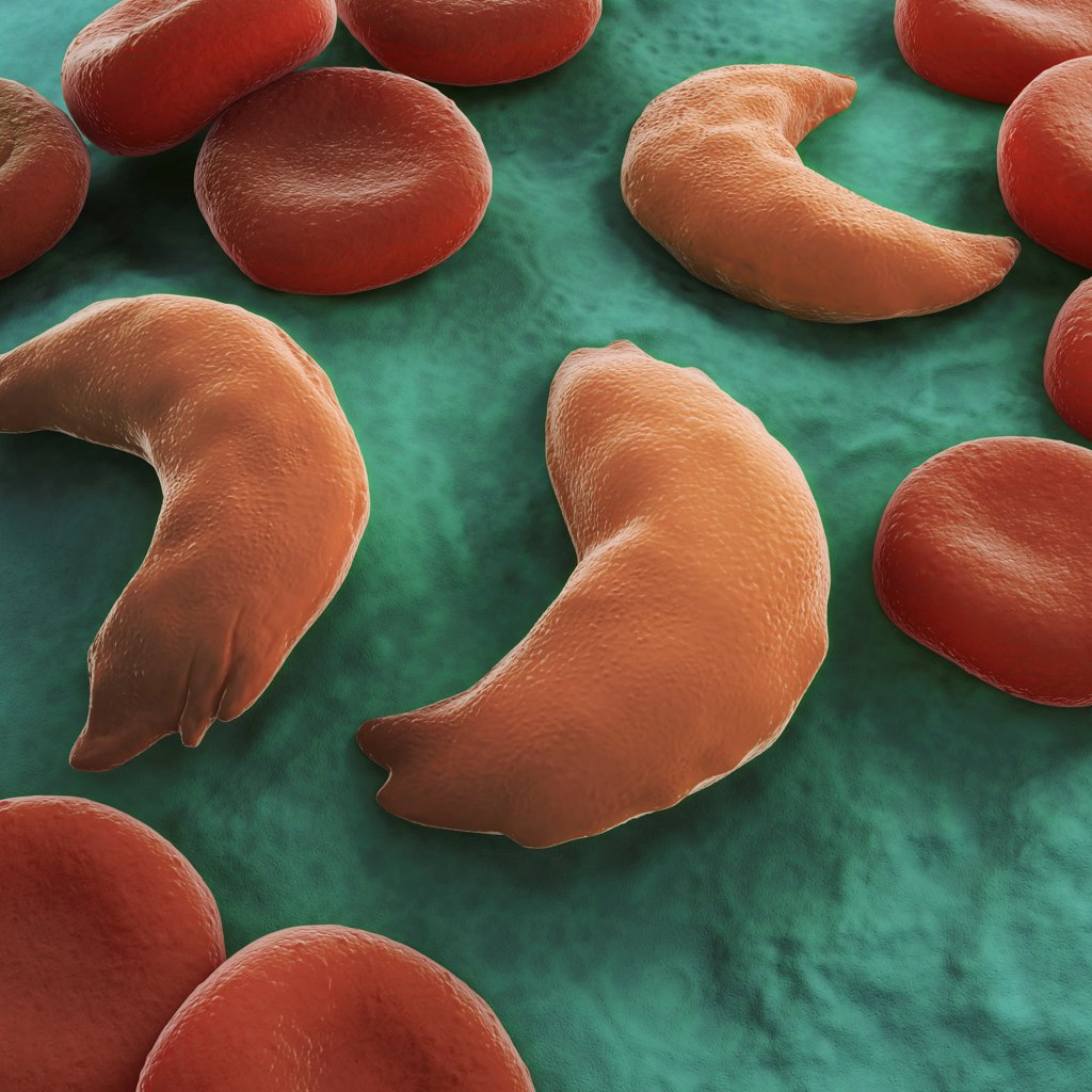 Sickle-cell disease, sickle-cell anaemia or drepanocytosis is a recessive genetic blood disorder characterized by red blood cells that assume an abnormal, rigid, sickle shape. Here healthy blood cells are seen along with diseased cells. : Stock Photo
