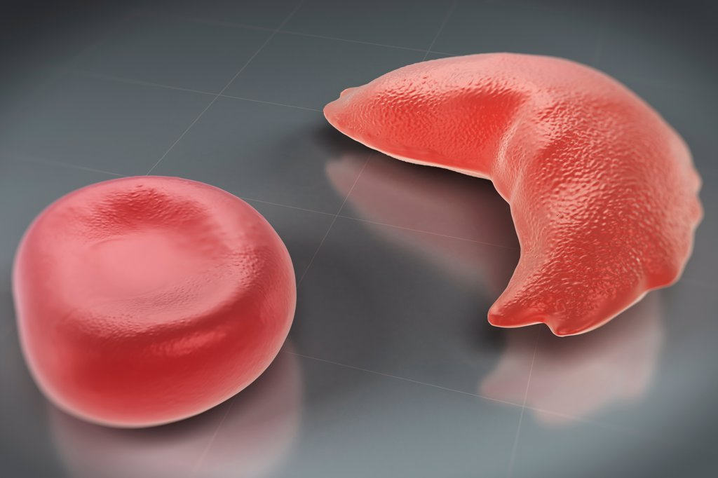 sickel cell research papers Sickle cell anemia - the sickle cell disease is an inherited blood disorder that affects red blood cells people with sickle cell have red blood cells that have mostly hemoglobin's, sometimes these red blood cells become sickle-shaped or crescent shaped and have trouble going through small blood vessels.