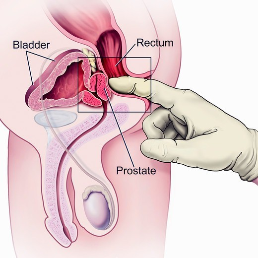 A cutaway view of the male reproductive and urinary systems shows the proper method for examining the prostrate for any abnormalites. : Stock Photo