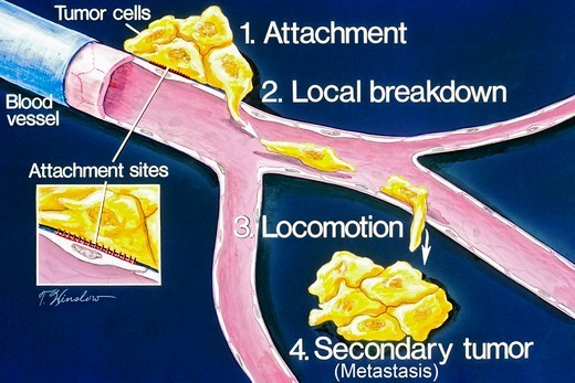 This is a schematic drawing of the stages of metastasis 1) attachment 2) local breakdown 3) locomotion 4) secondary tumor. This illustration explains the process of metastasis. Once metastatic cells are attached to the basement membrane (a physical barrier that seperates tissue components), they break through with the help of an enzyme called type IV collagenase. Cancer cells then move through the blood stream enabling them to spread to other parts of the body. A secondary tumor may form at anot : Stock Photo