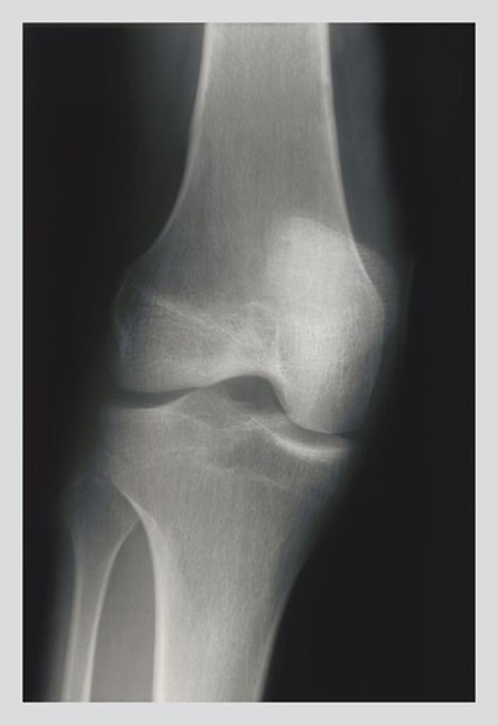 Stock Photo: 4408-1007 Knee, Medical - Xray / Radiology