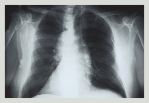 Stock Photo: 4408-1020 Chest, Medical - Xray / Radiology